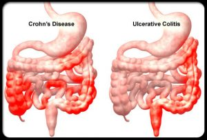 crohns-disease-Haritaki