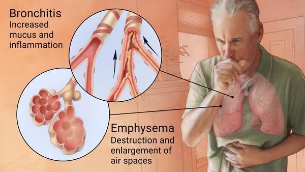 Haritaki benefits COPD